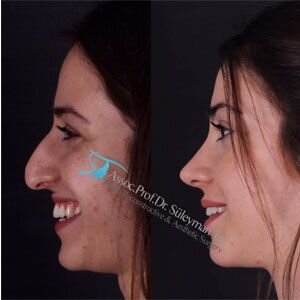 Your teenager wants a nose job! : a guide to parents