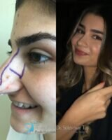 1 celebrity nose job before and after