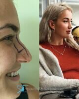 11 celebrity nose job before and after