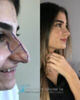 2 celebrity nose job before and after