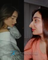 4 celebrity nose job before and after
