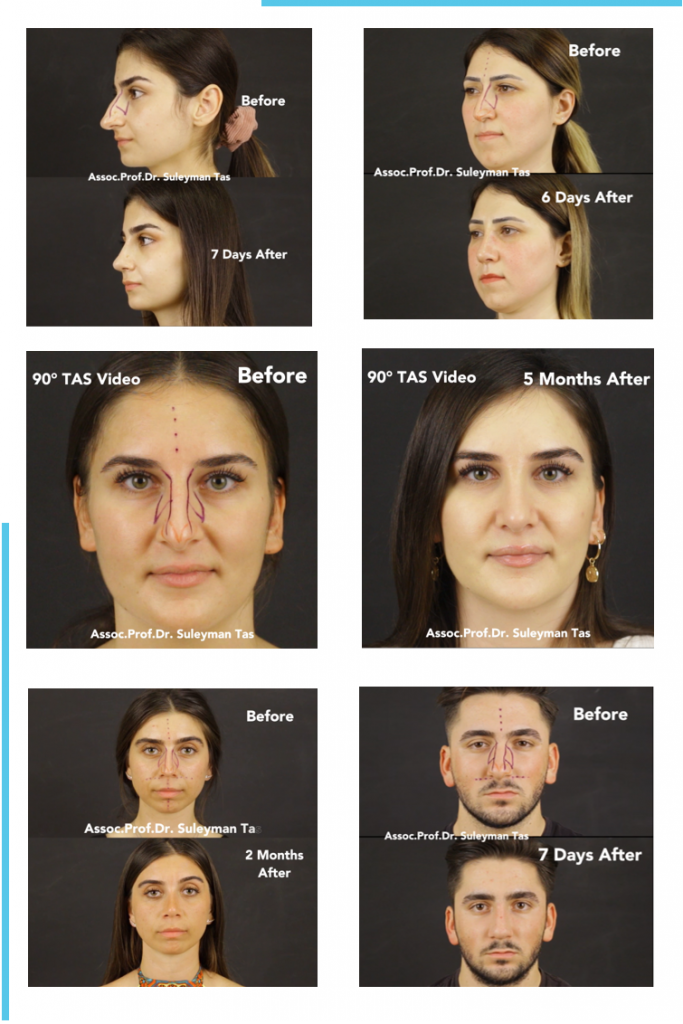 90° tas® video | rhinoplasty before and after videos