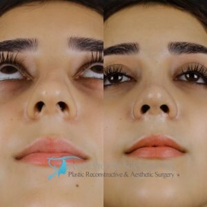 Is there scarring after a rhinoplasty (nose job)?