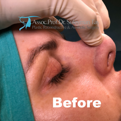 Revision nose job before and after 2