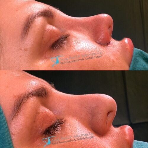 Revision nose job before and after 3