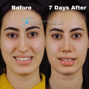 Celebrity nose job: before and after