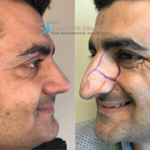 Nose surgery before and after