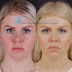 Revision nose job before and after