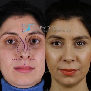 Rhinoplasty before and after hump treatment