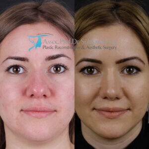 Rhinoplasty before and after thick skin