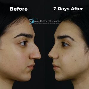 Causes and consequences of failed rhinoplasty