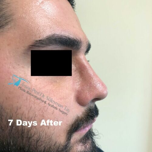 Thick skin male nose surgery