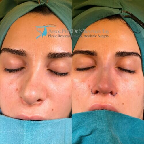 Thick skin nose surgery