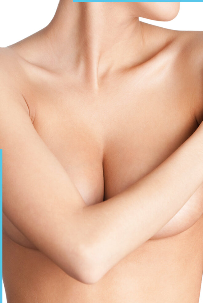 Scarring after breast surgery