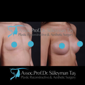 Pregnancy and breast aesthetic surgeries